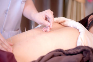 Bio Medical Dry Needling